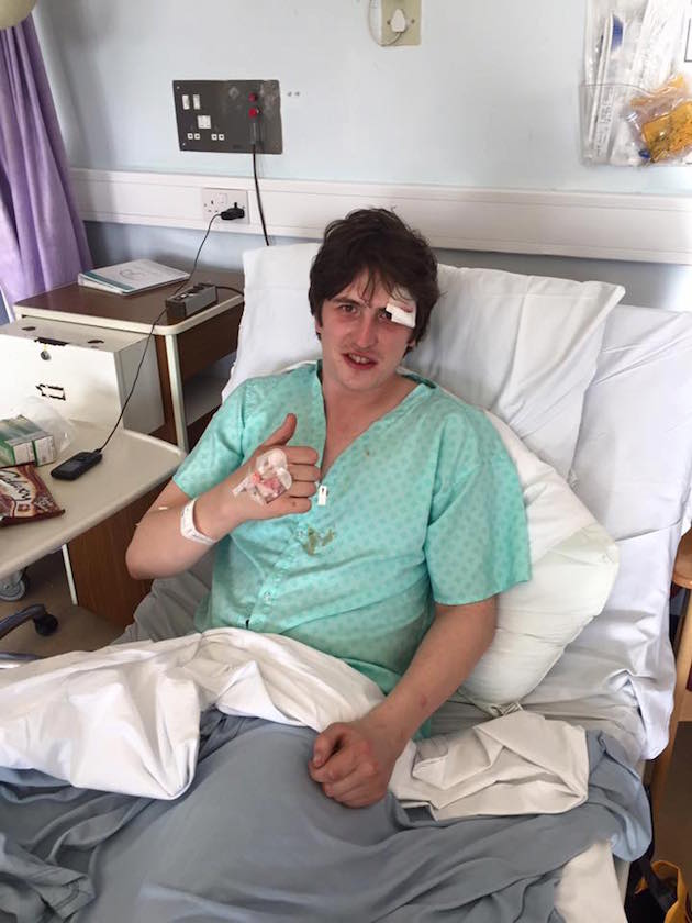 Cabbage's Lee Broadbent in hospital after breaking his pubic rami